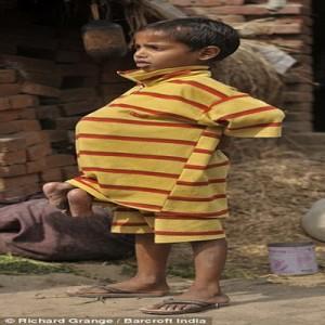 """فرحة الطفل """"كومار"""" بعد التخلص"""