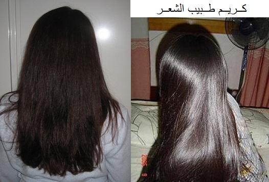 كريم طبيب الشعر سلفر 501454392.jpg